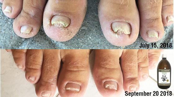 nail fungus cure Archives - ANA Naturals